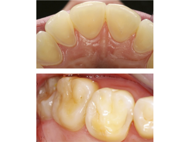 Opinions and Treatment decisions for Dental Erosion
