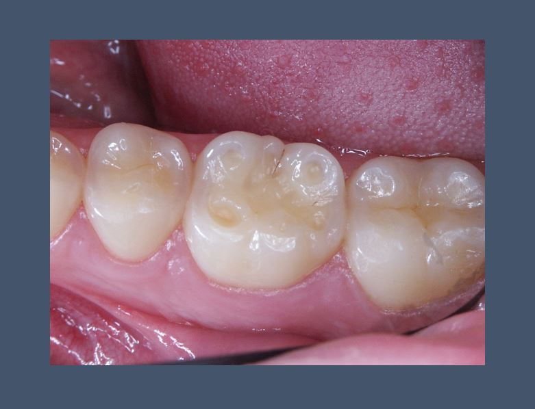 Saliva proteins may protect against erosive tooth wear