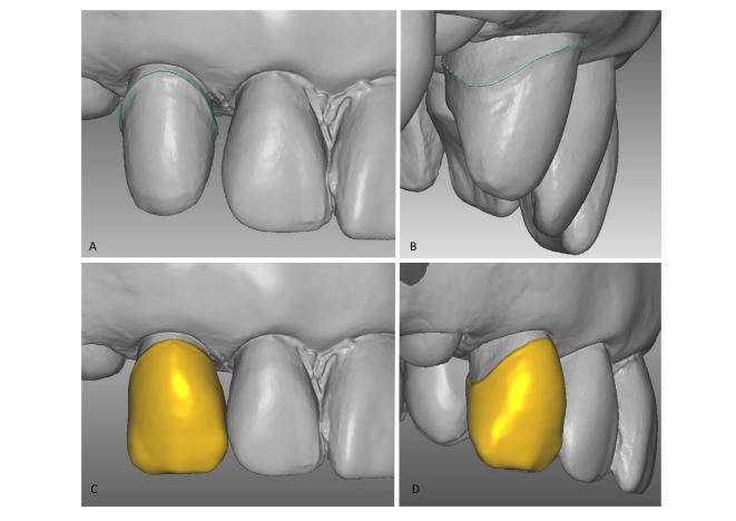 Improved bonding of zirconia crowns with resin-based cement