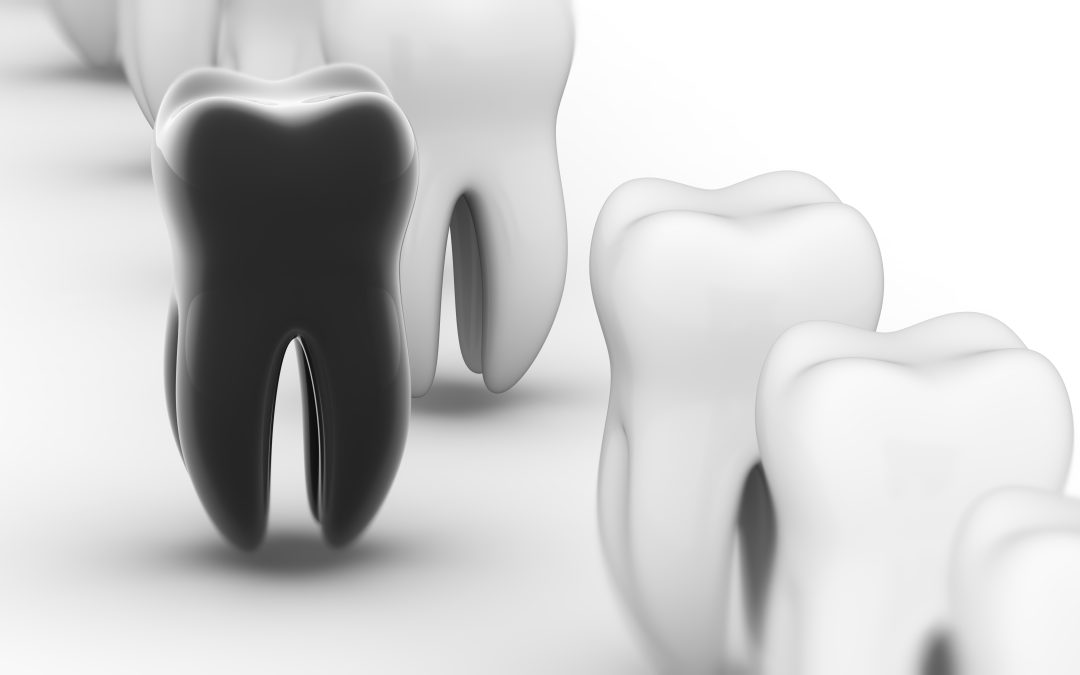 New review article: genetic aspects of dental erosive wear and dental caries
